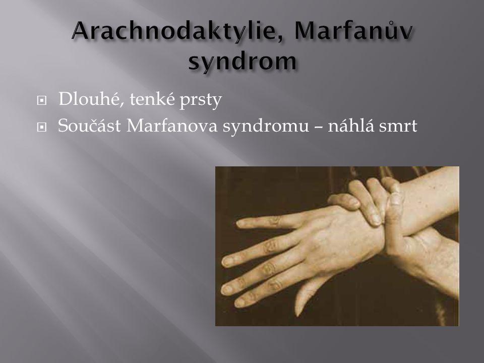 Arachnodaktylie, Marfanův syndrom