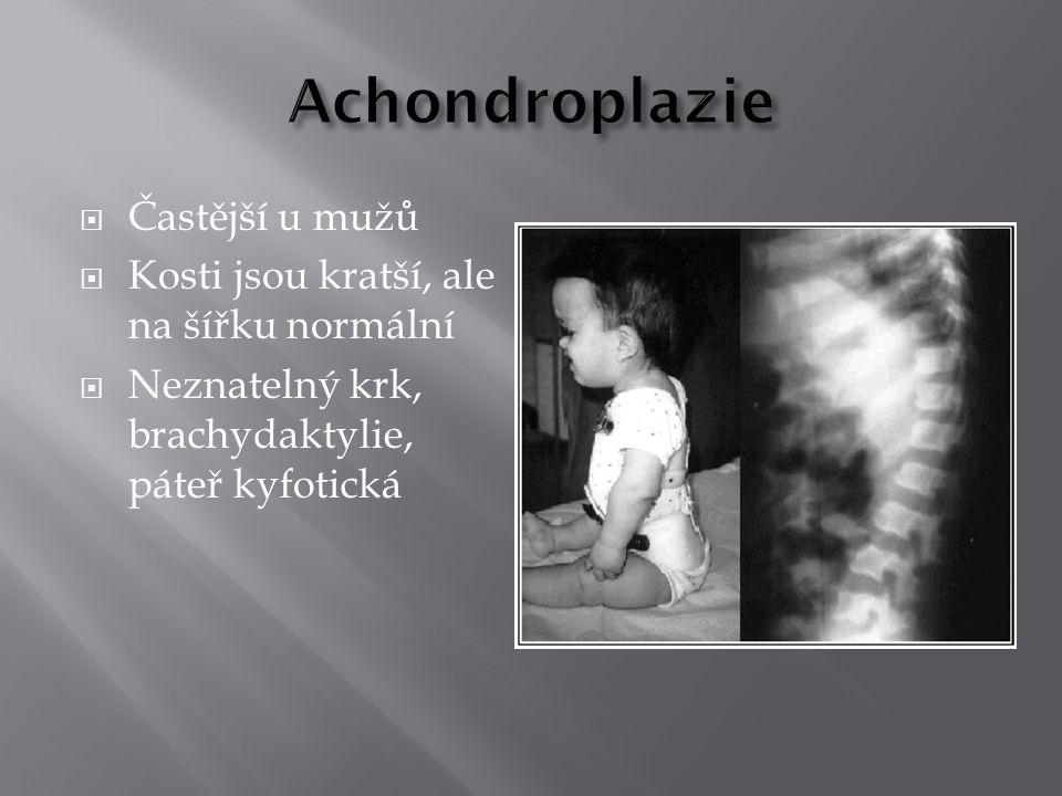 Achondroplazie Častější u mužů