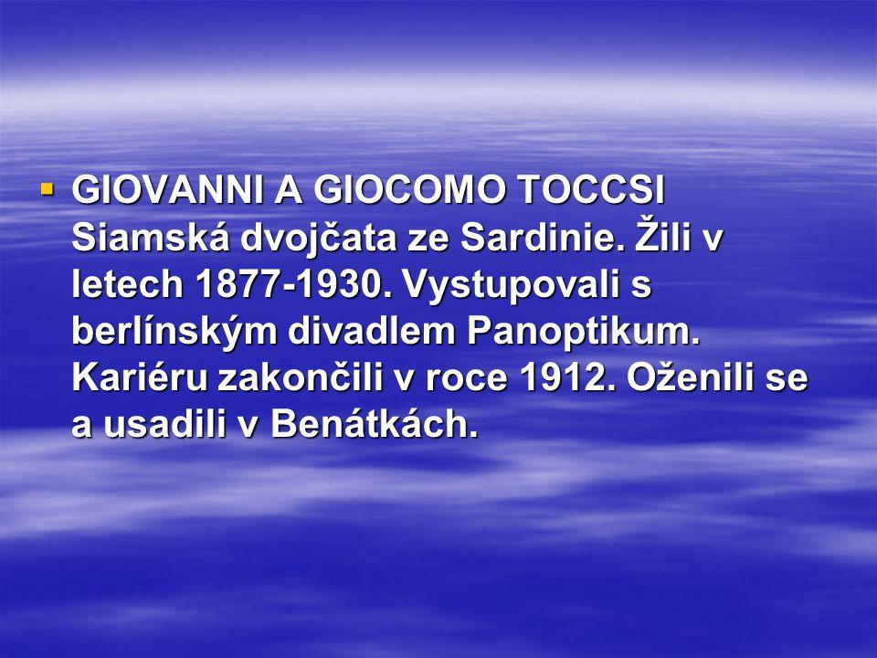 GIOVANNI A GIOCOMO TOCCSI Siamská dvojčata ze Sardinie