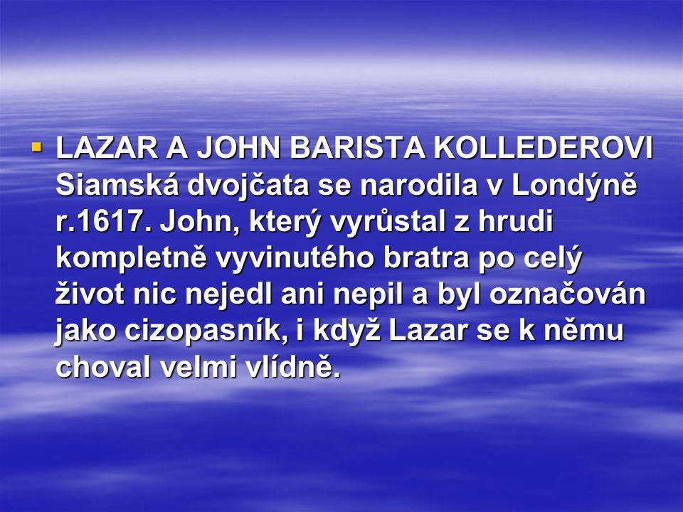 LAZAR A JOHN BARISTA KOLLEDEROVI Siamská dvojčata se narodila v Londýně r.1617.