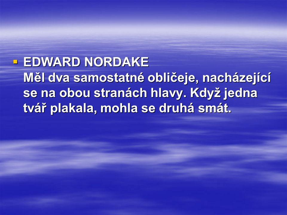 EDWARD NORDAKE Měl dva samostatné obličeje, nacházející se na obou stranách hlavy.