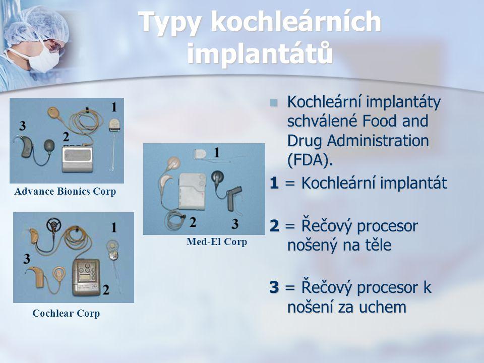 Typy kochleárních implantátů