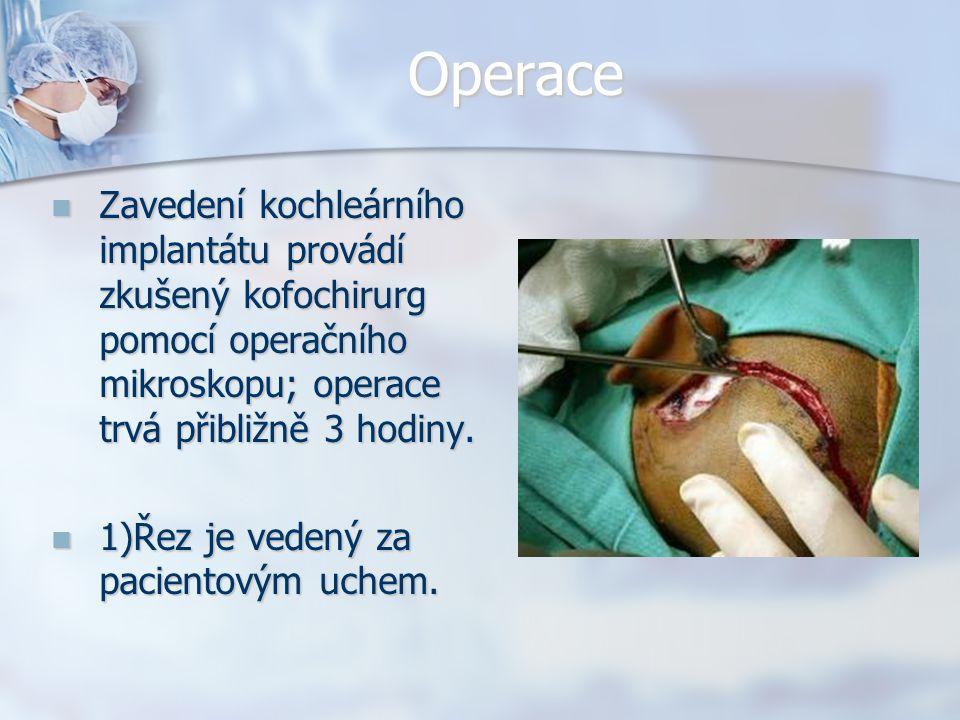 Operace Zavedení kochleárního implantátu provádí zkušený kofochirurg pomocí operačního mikroskopu; operace trvá přibližně 3 hodiny.