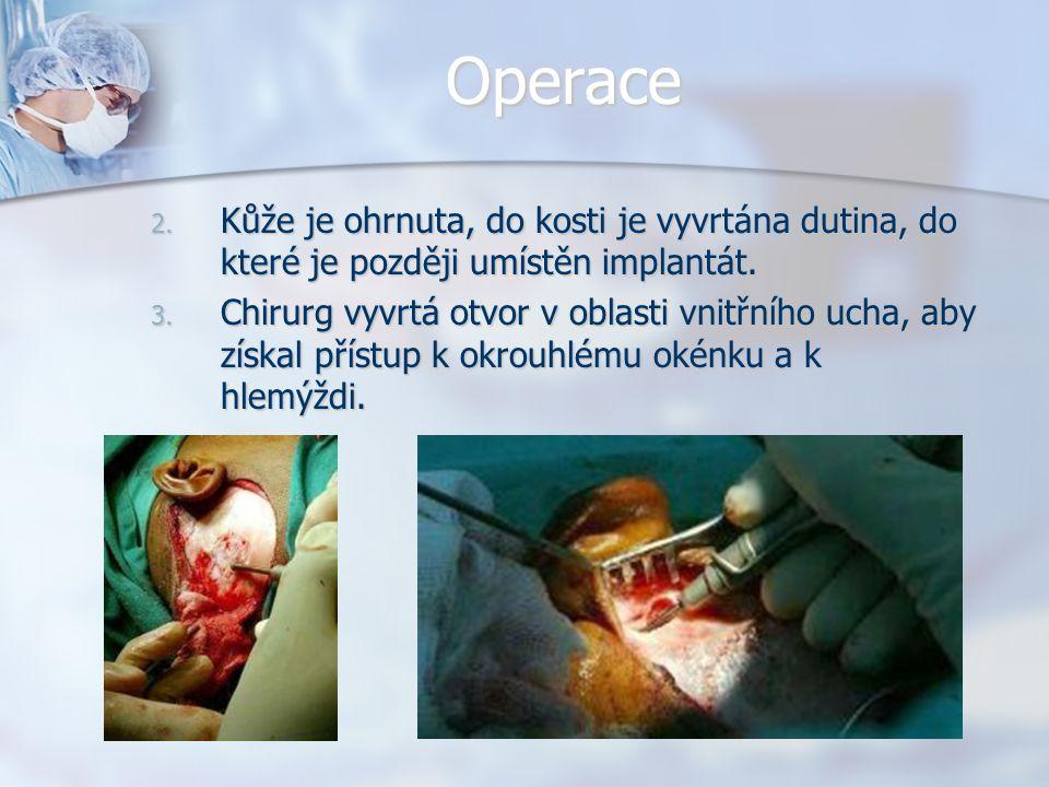 Operace Kůže je ohrnuta, do kosti je vyvrtána dutina, do které je později umístěn implantát.