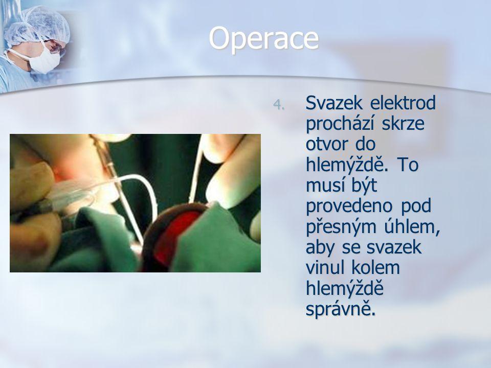 Operace Svazek elektrod prochází skrze otvor do hlemýždě.