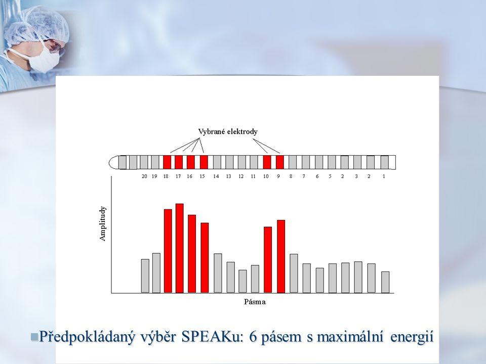 Předpokládaný výběr SPEAKu: 6 pásem s maximální energií