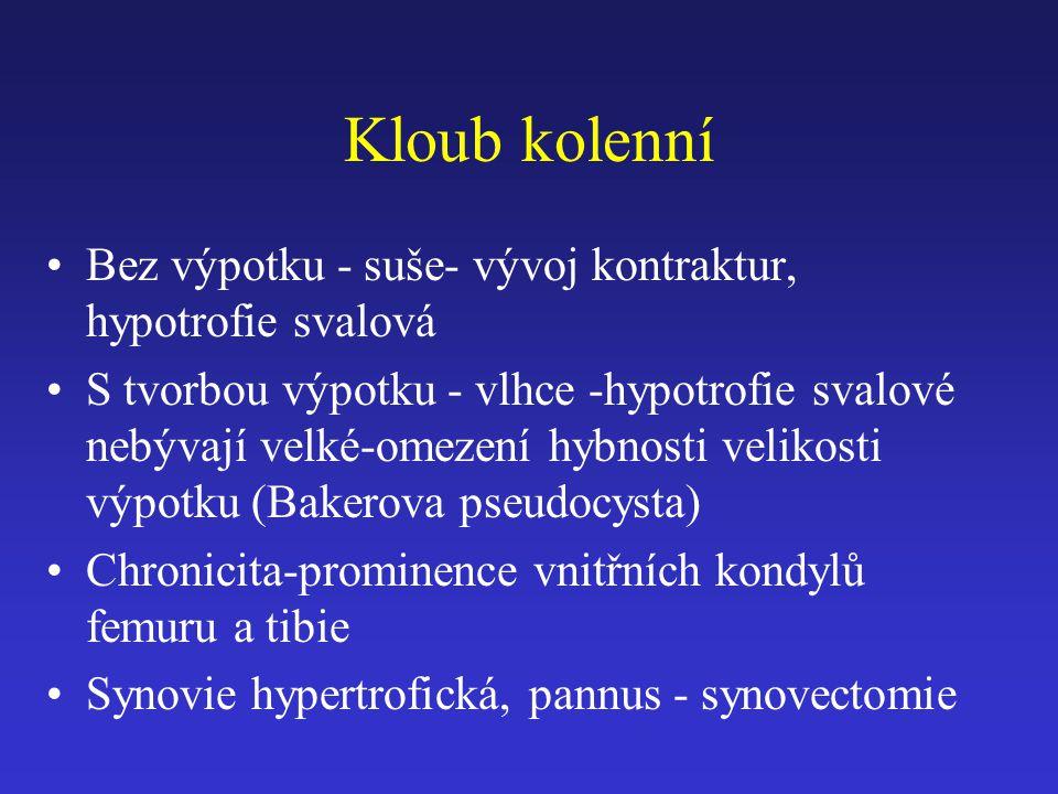 Kloub kolenní Bez výpotku - suše- vývoj kontraktur, hypotrofie svalová