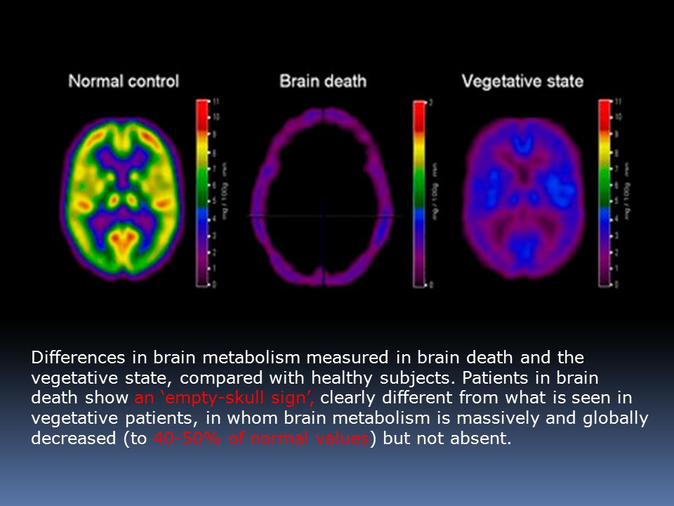Differences in brain metabolism measured in brain death and the vegetative state, compared with healthy subjects.