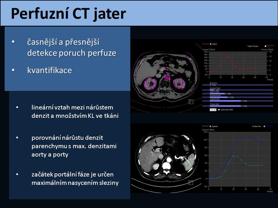 Perfuzní CT jater časnější a přesnější detekce poruch perfuze