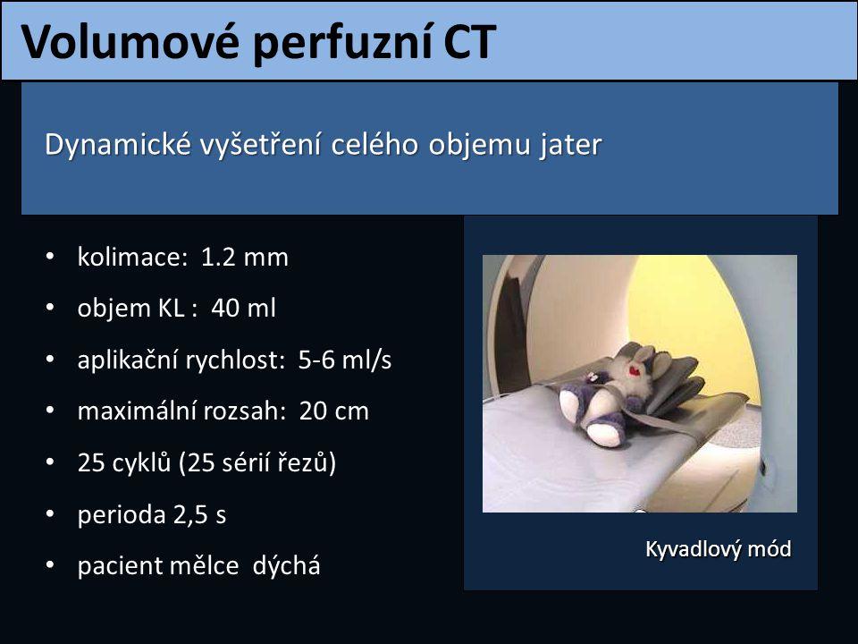 Volumové perfuzní CT Dynamické vyšetření celého objemu jater