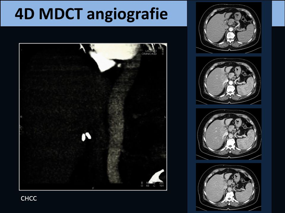 4D MDCT angiografie CHCC