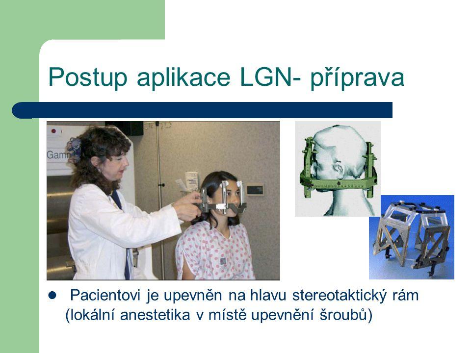 Postup aplikace LGN- příprava