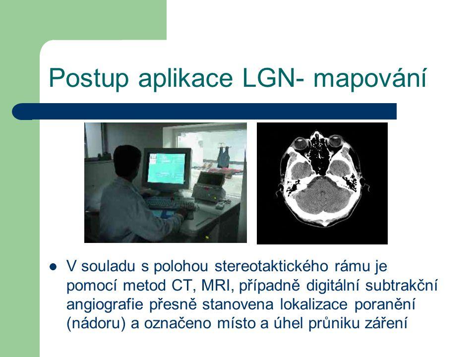Postup aplikace LGN- mapování