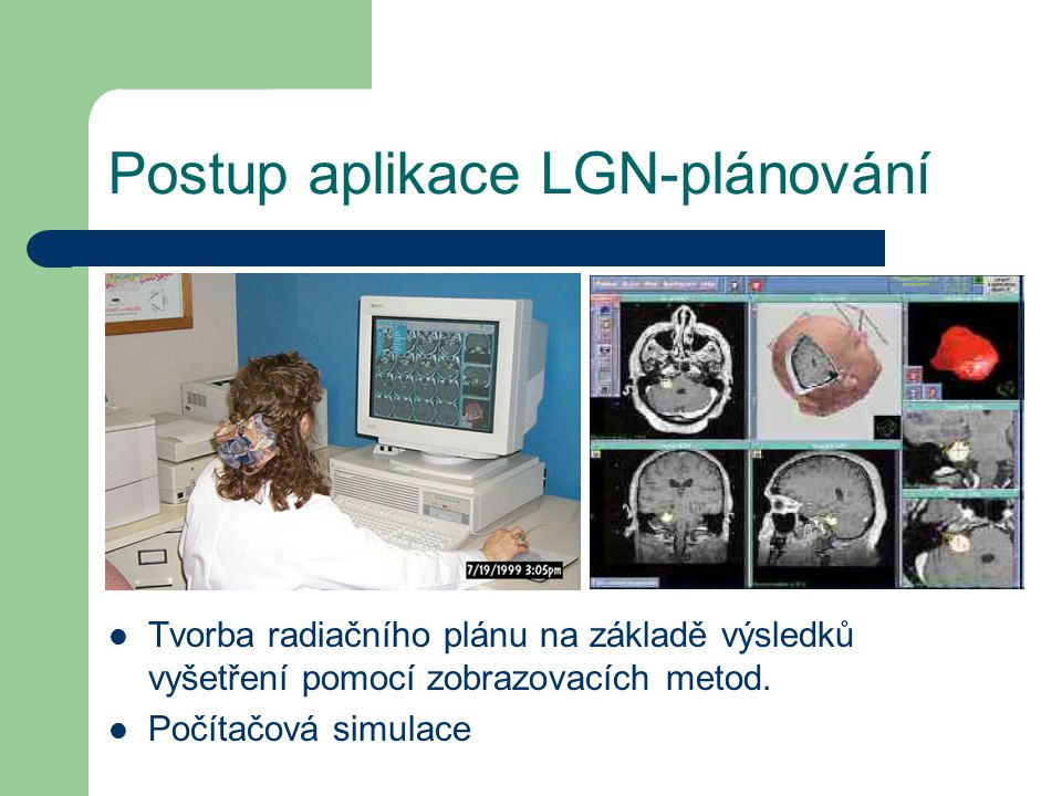 Postup aplikace LGN-plánování