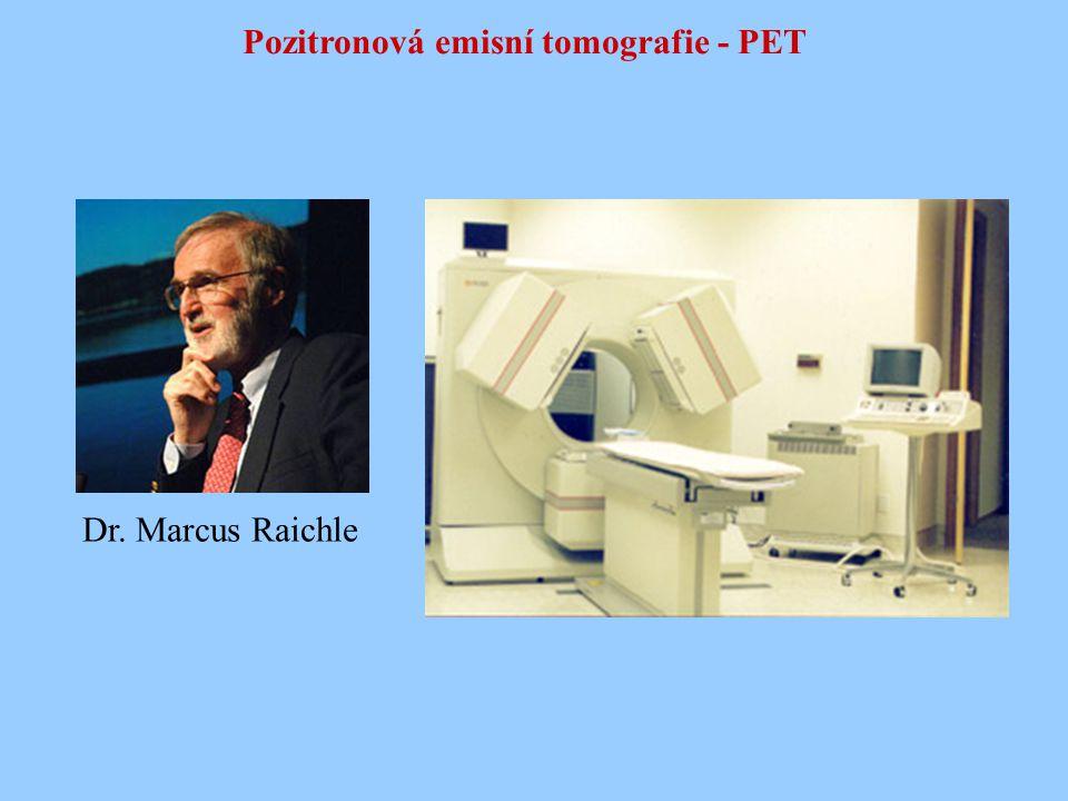 Pozitronová emisní tomografie - PET