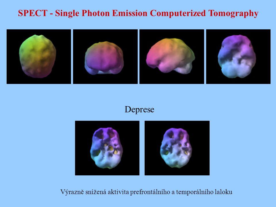 SPECT - Single Photon Emission Computerized Tomography