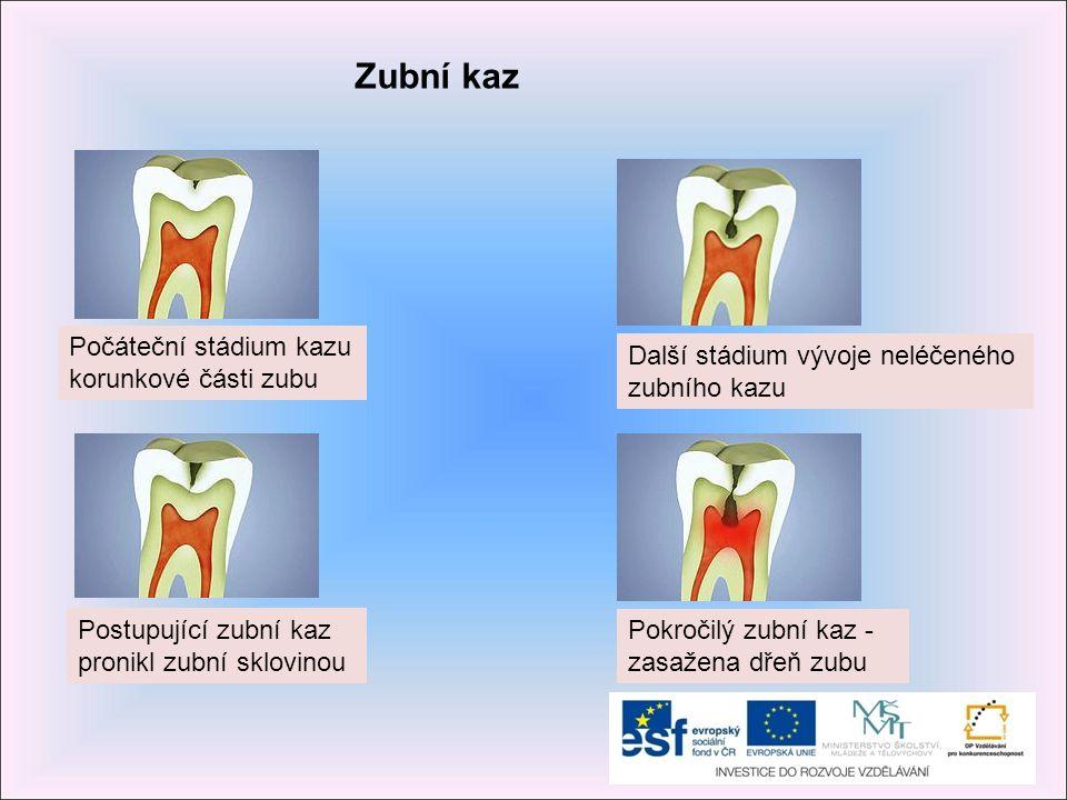 Zubní kaz Počáteční stádium kazu korunkové části zubu