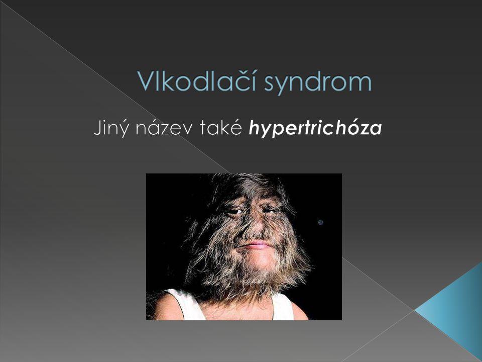 Jiný název také hypertrichóza