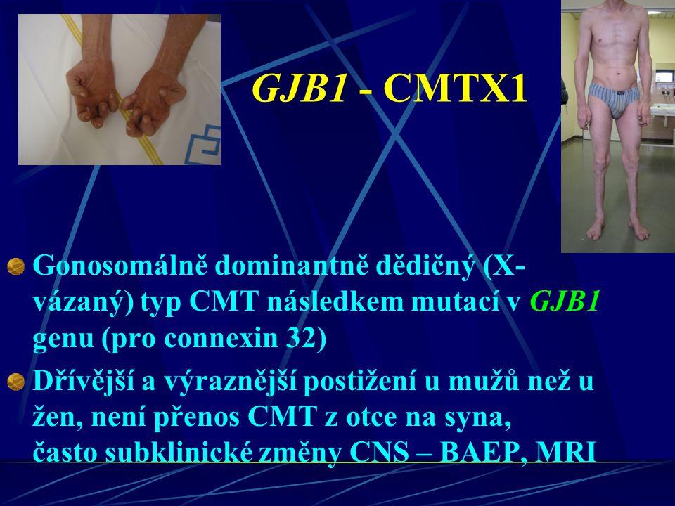GJB1 - CMTX1 Gonosomálně dominantně dědičný (X-vázaný) typ CMT následkem mutací v GJB1 genu (pro connexin 32)