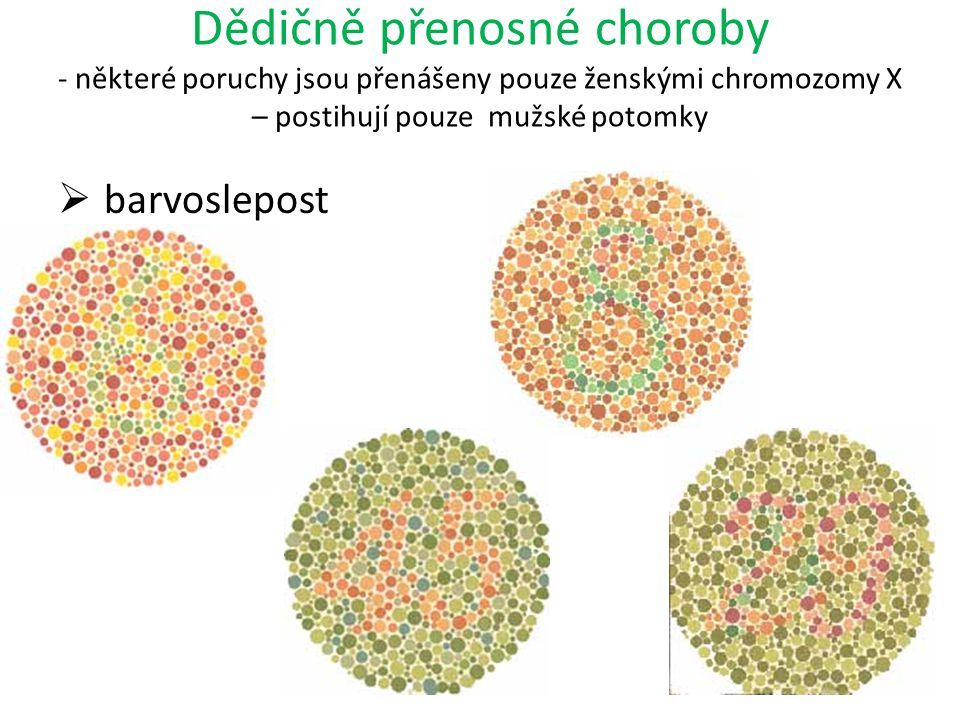 Dědičně přenosné choroby - některé poruchy jsou přenášeny pouze ženskými chromozomy X – postihují pouze mužské potomky