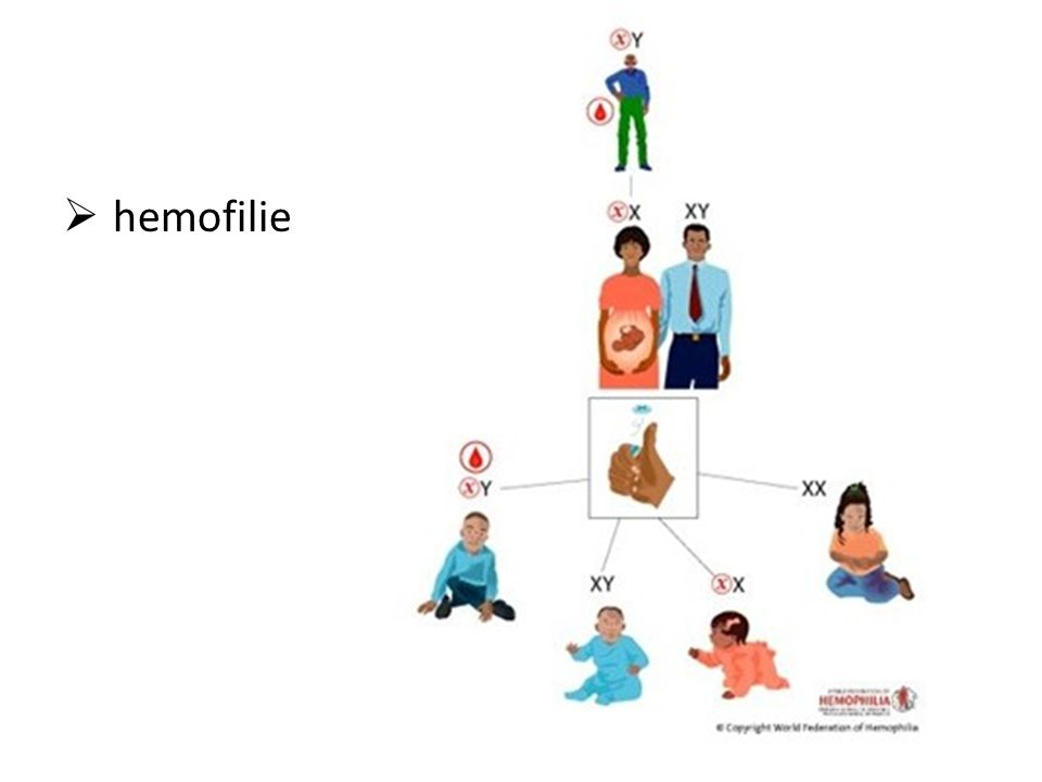 hemofilie