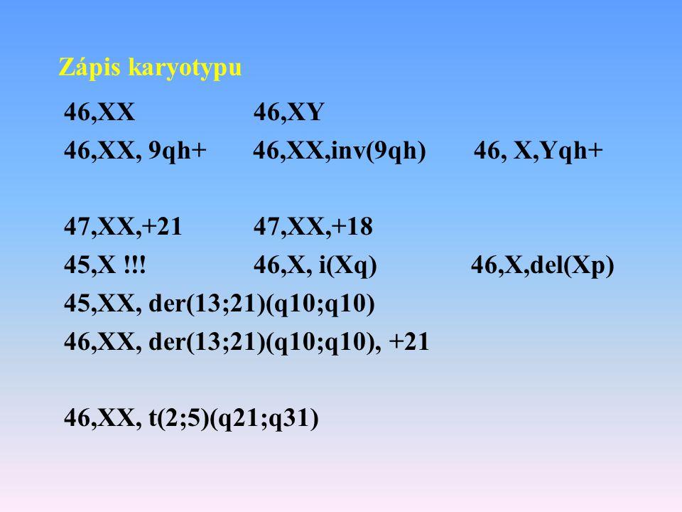 Zápis karyotypu 46,XX 46,XY. 46,XX, 9qh+ 46,XX,inv(9qh) 46, X,Yqh+ 47,XX,+21 47,XX,+18.