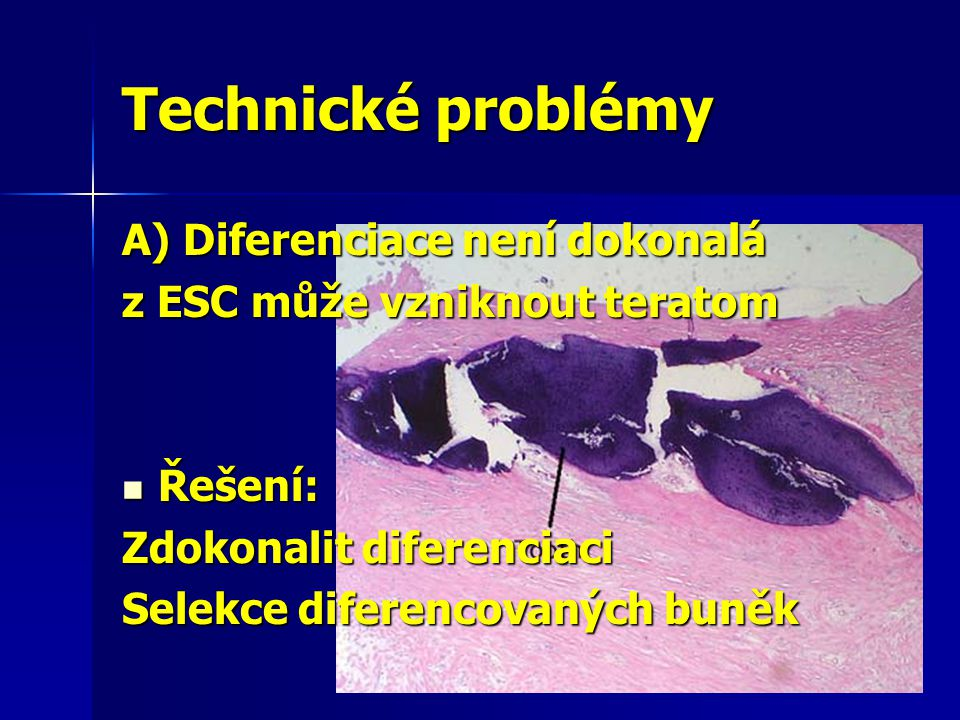 Technické problémy A) Diferenciace není dokonalá