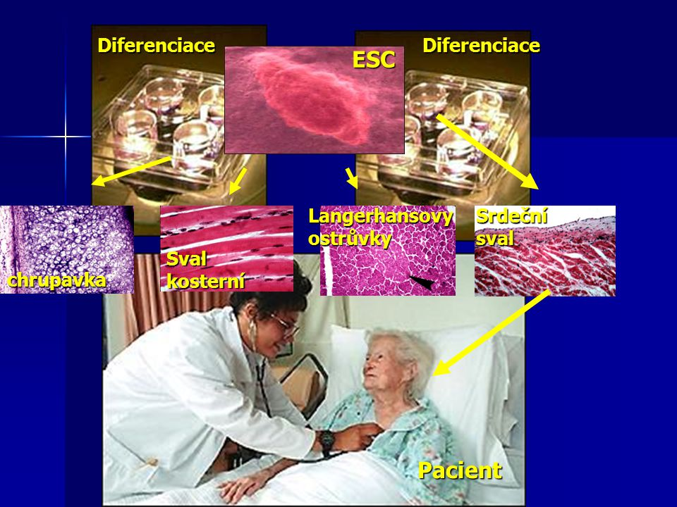 ESC Pacient Diferenciace Diferenciace Langerhansovy ostrůvky
