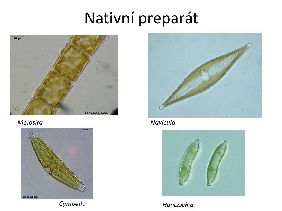 Nativní preparát Melosira Navicula Cymbella Hantzschia