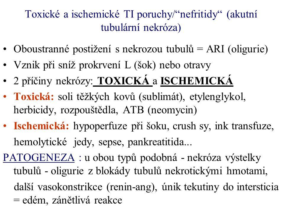 Toxické a ischemické TI poruchy/ nefritidy (akutní tubulární nekróza)