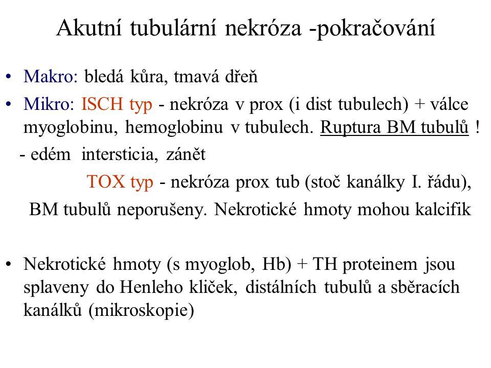 Akutní tubulární nekróza -pokračování