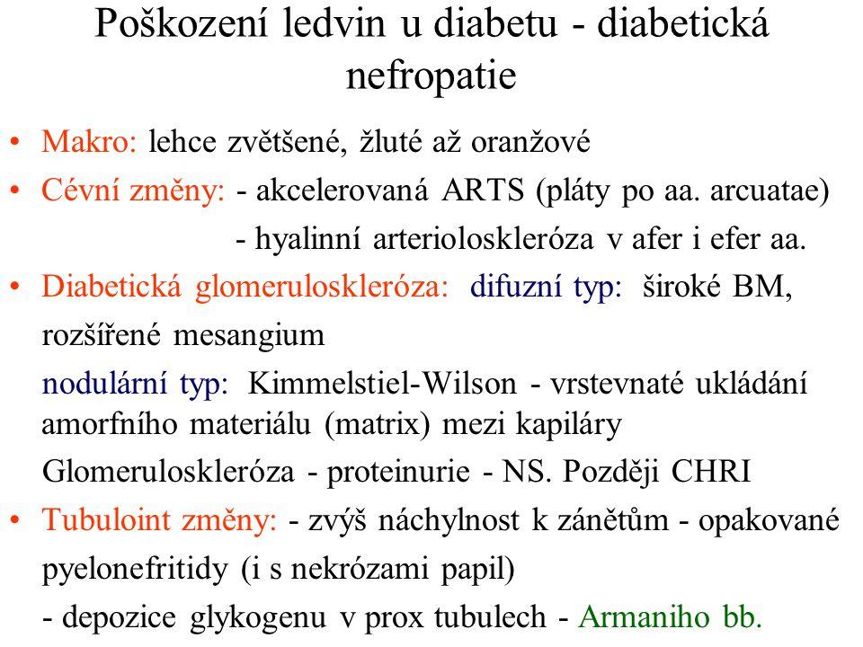 Poškození ledvin u diabetu - diabetická nefropatie