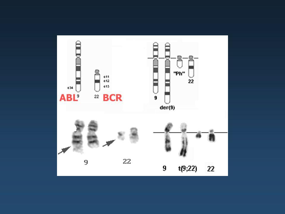 ABL BCR