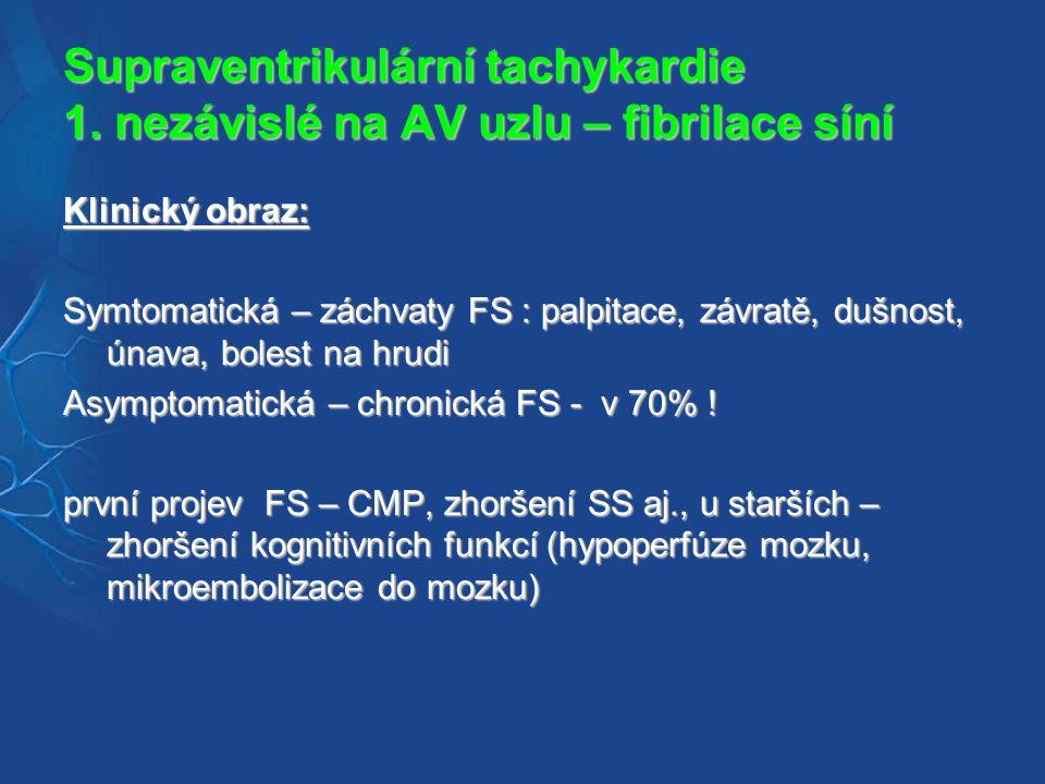 Supraventrikulární tachykardie 1. nezávislé na AV uzlu – fibrilace síní
