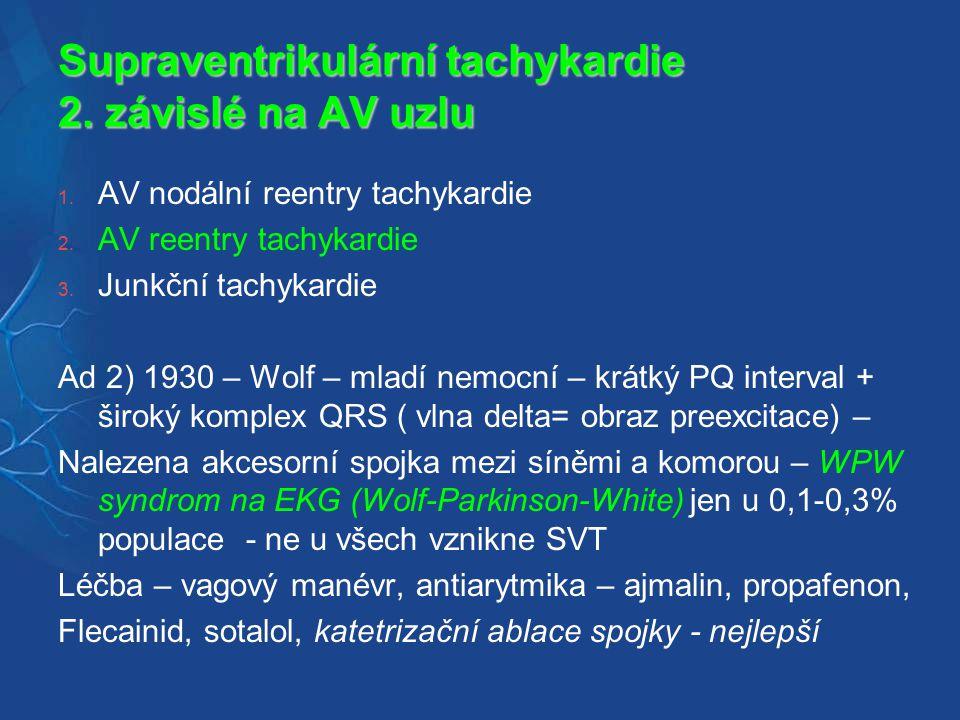 Supraventrikulární tachykardie 2. závislé na AV uzlu
