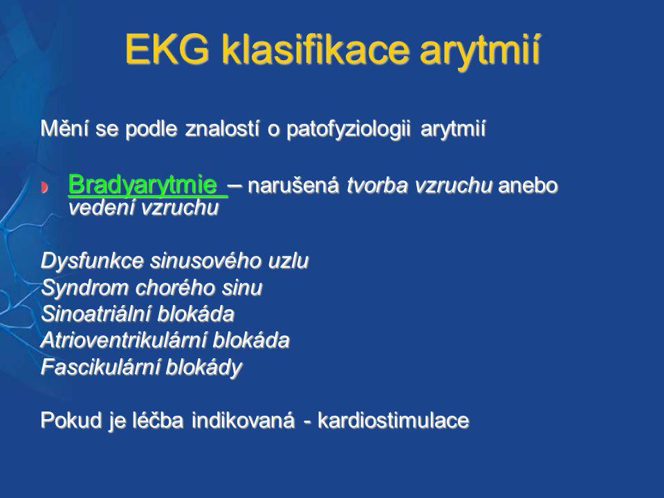 EKG klasifikace arytmií