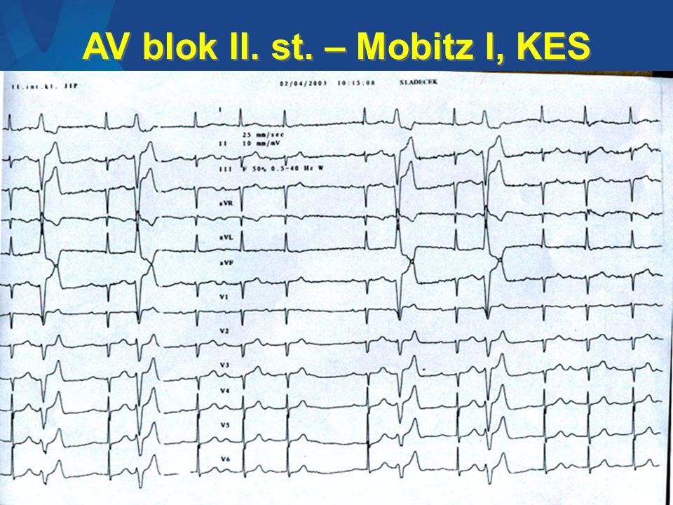 AV blok II. st. – Mobitz I, KES
