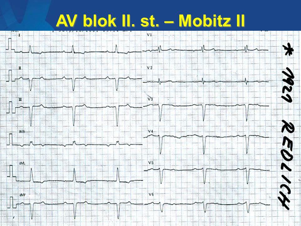 AV blok II. st. – Mobitz II