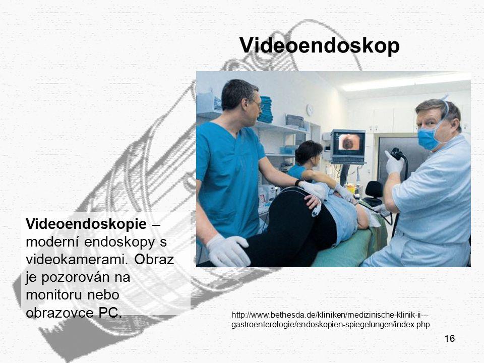 Videoendoskop Videoendoskopie – moderní endoskopy s videokamerami. Obraz je pozorován na monitoru nebo obrazovce PC.