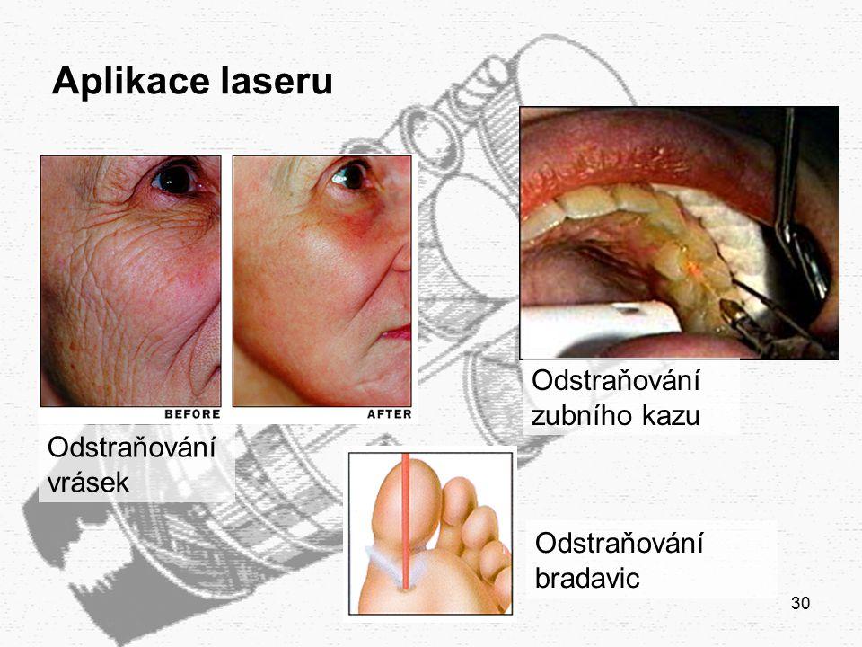 Aplikace laseru Odstraňování zubního kazu Odstraňování vrásek