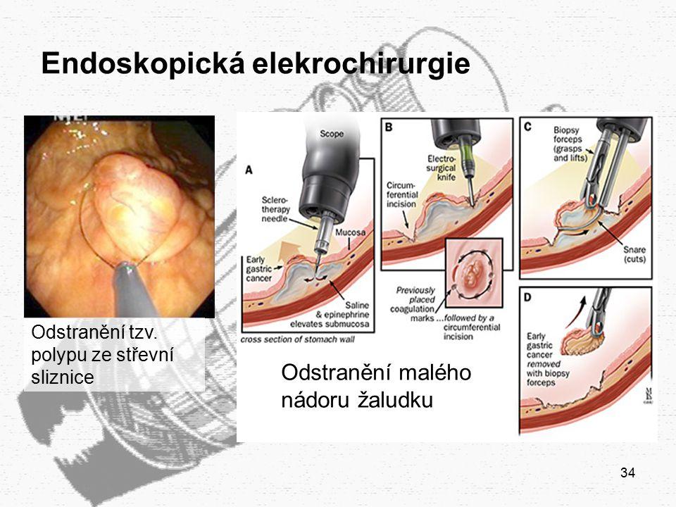 Endoskopická elekrochirurgie