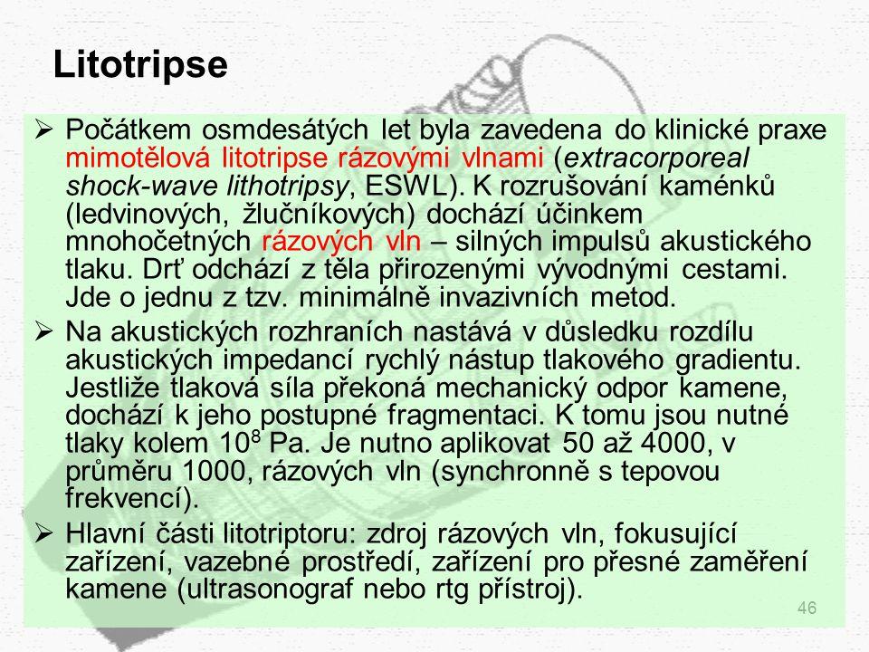 Litotripse