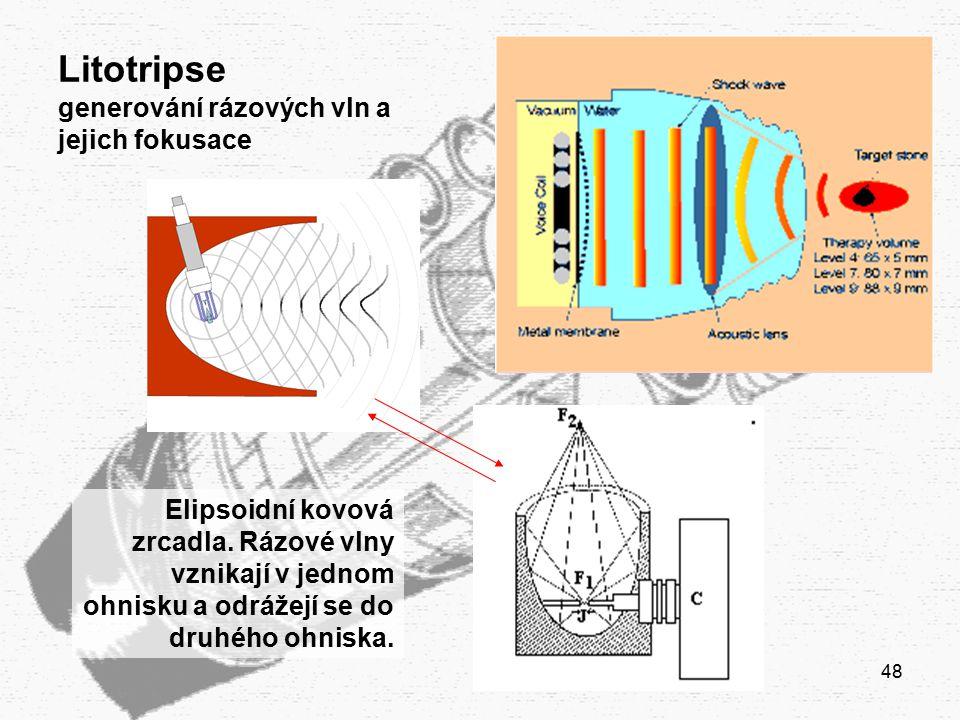 Litotripse generování rázových vln a jejich fokusace