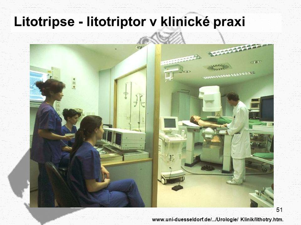 www.uni-duesseldorf.de/.../Urologie/ Klinik/lithotry.htm.