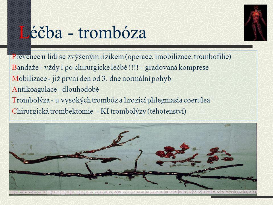 Léčba - trombóza Prevence u lidí se zvýšeným rizikem (operace, imobilizace, trombofilie)