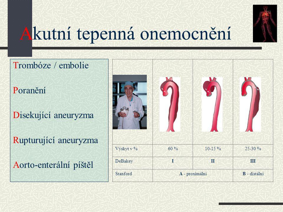 Akutní tepenná onemocnění