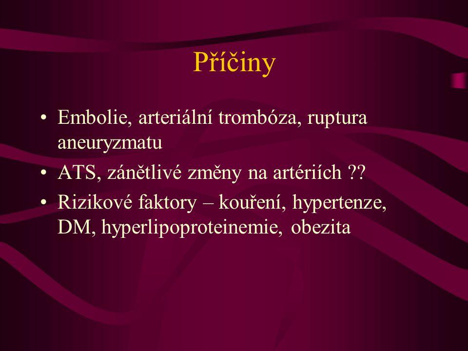 Příčiny Embolie, arteriální trombóza, ruptura aneuryzmatu