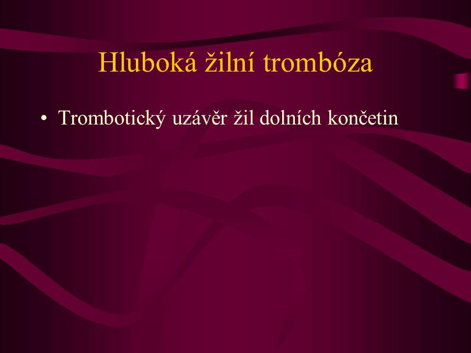 Hluboká žilní trombóza