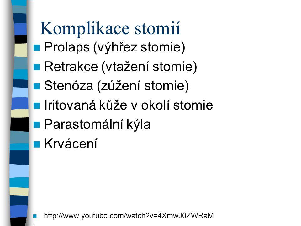 Komplikace stomií Prolaps (výhřez stomie) Retrakce (vtažení stomie)