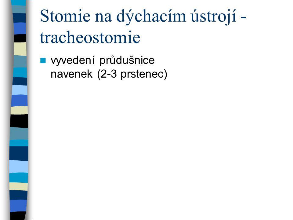 Stomie na dýchacím ústrojí - tracheostomie